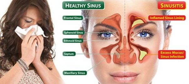 Acute Sinusitis
