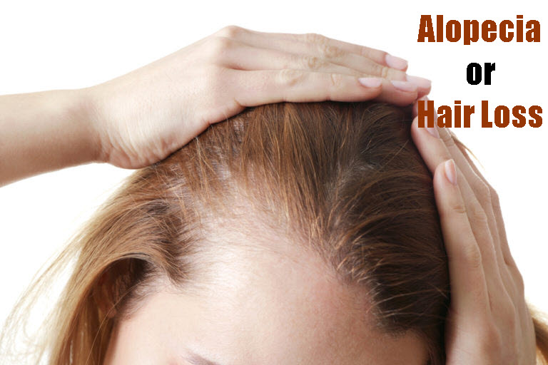 Alopecia or Hair Loss
