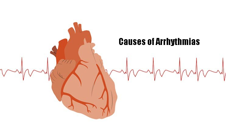 Causes of Arrhythmias