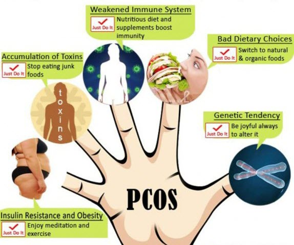 Causes of PCOS or PCOD