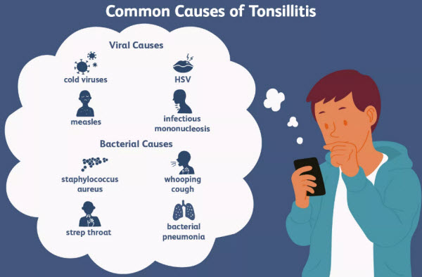 Causes of Tonsillitis