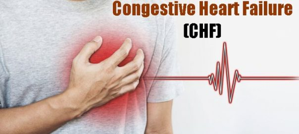 Congestive Heart Failure or CHF