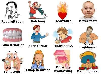 GERD Signs and Symptoms