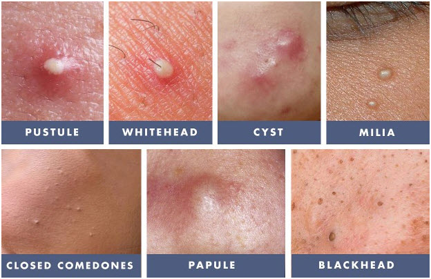 Signs and Symptoms of Acne - Different Types of Pimples