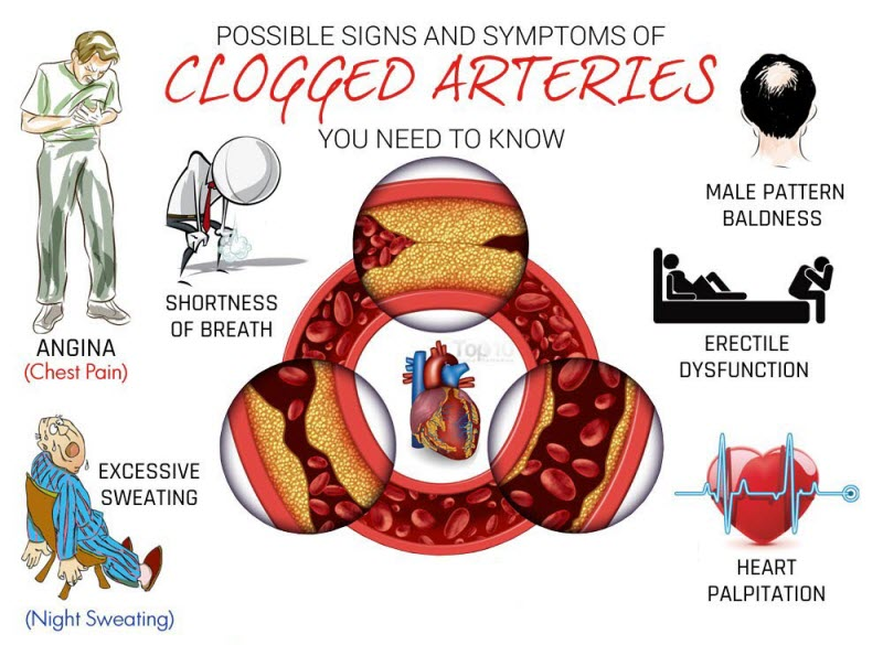 Signs and Symptoms of Atherosclerosis